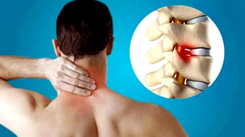 CERVICAL SPONDYLITIS SYMPTOMS AND TREATMENT