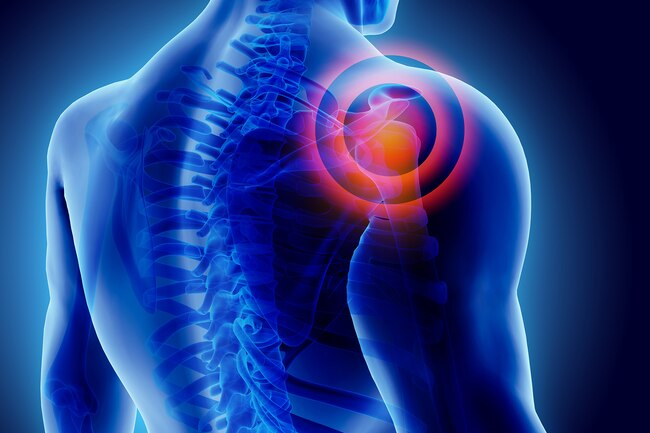 THE SYMPTOMS AND THE BEST TREATMENT FOR FROZEN SHOULDER