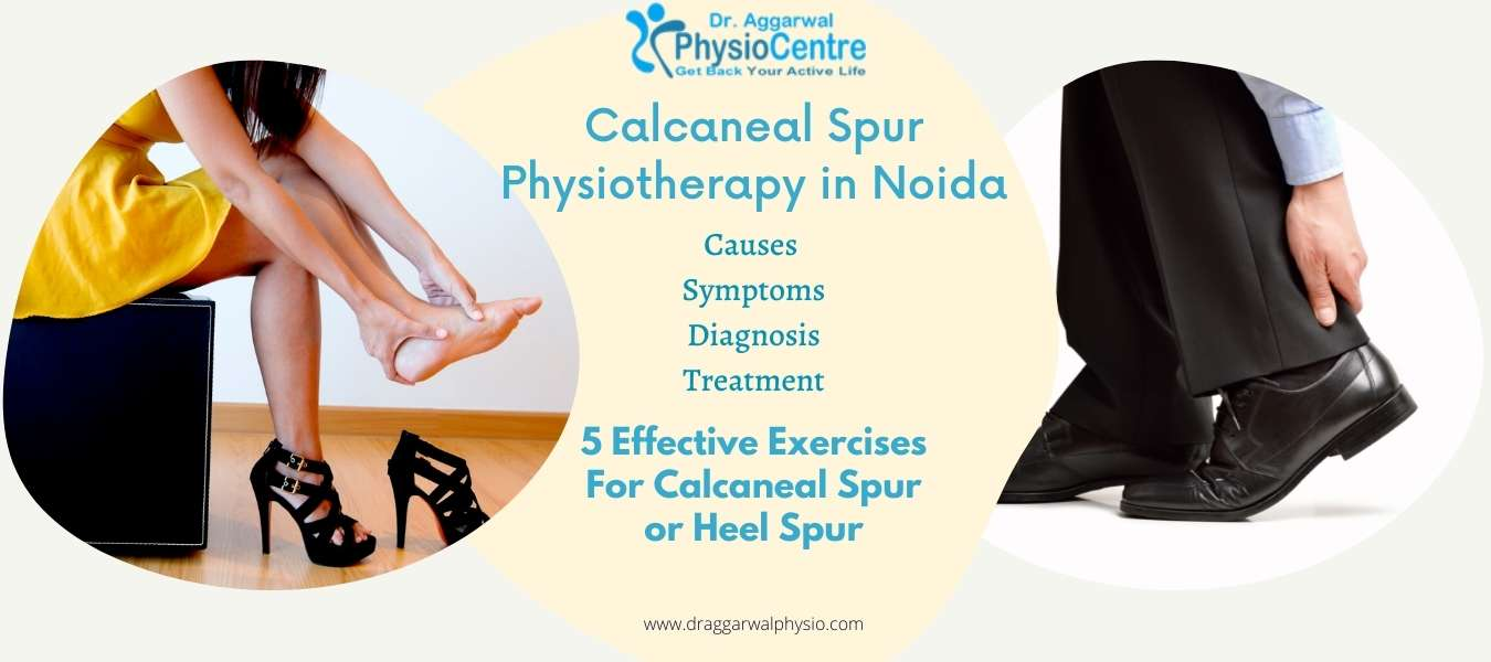 Calcaneal Spur Physiotherapy in Noida